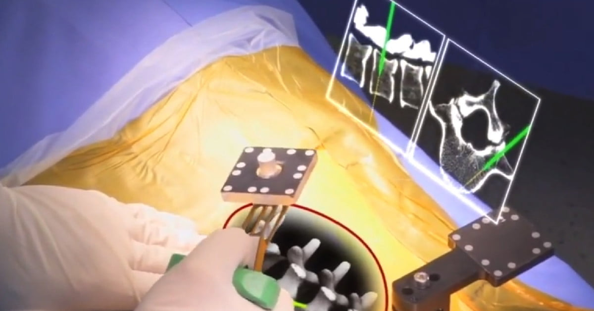 FDA Approves AR Surgery Tool That Gives Surgeons 'X-ray Vision'