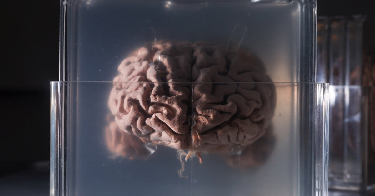 A I  System Analyzes Brain Activity to Turn Thoughts into