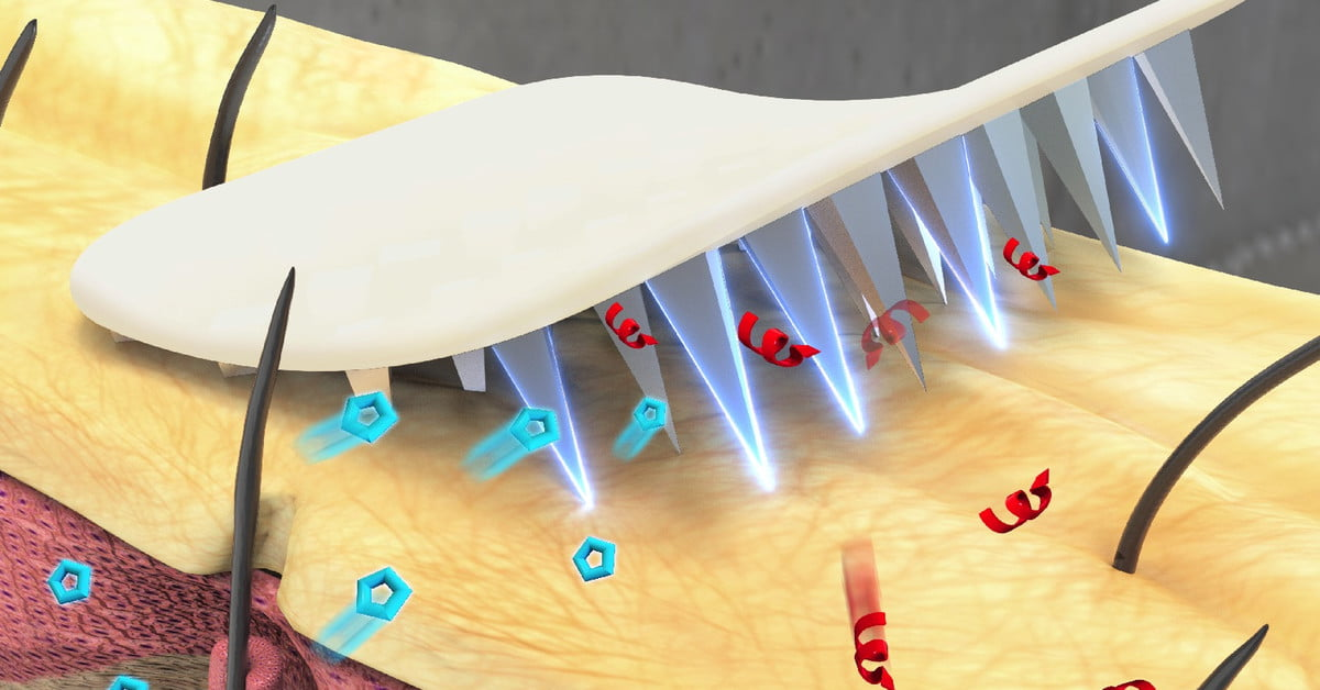 Microneedle Insulin Patch Could Make It Easier to Treat Diabetes | Digital Trends
