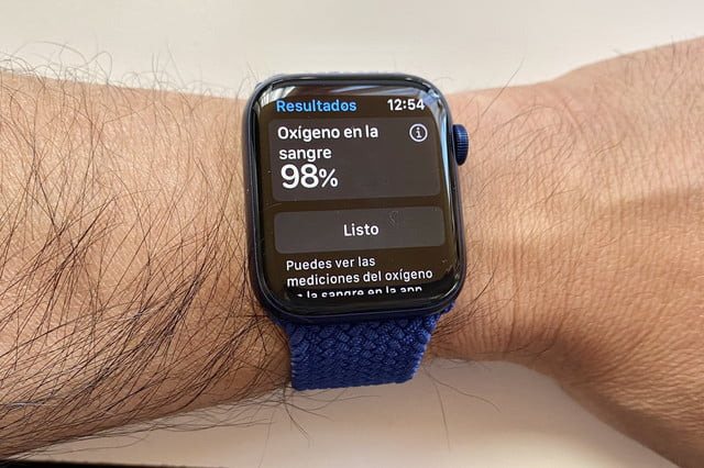 revision apple watch series 6 10